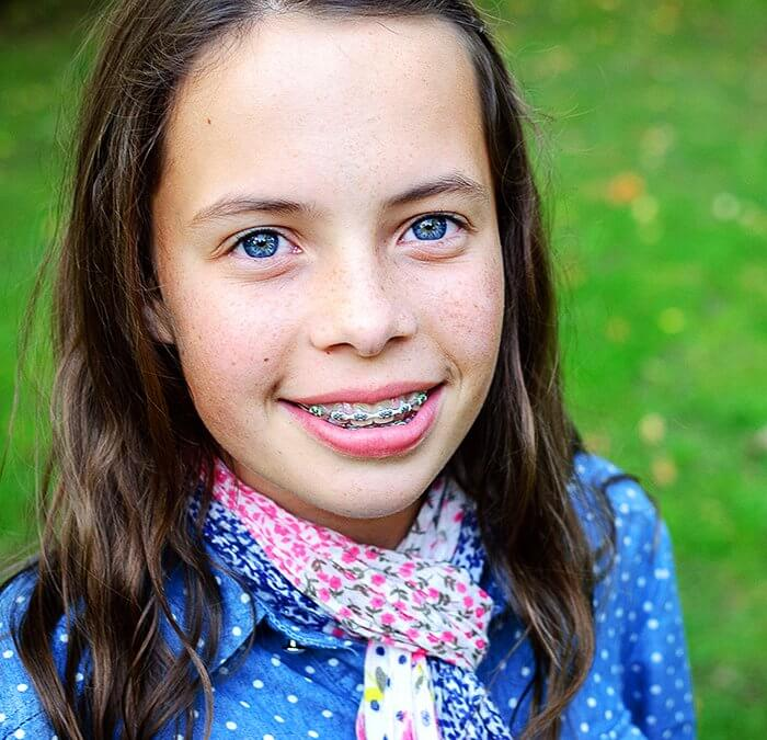 brackets para niños dientes de leche tratamiento de Ortodoncia