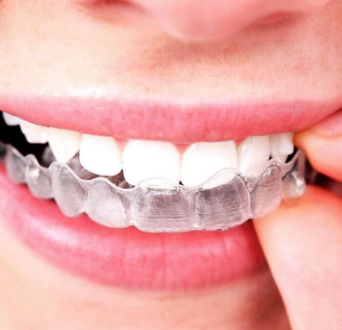 retenedor dental